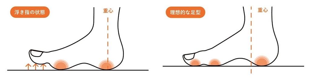 浮指の症例と理想的な足の重心